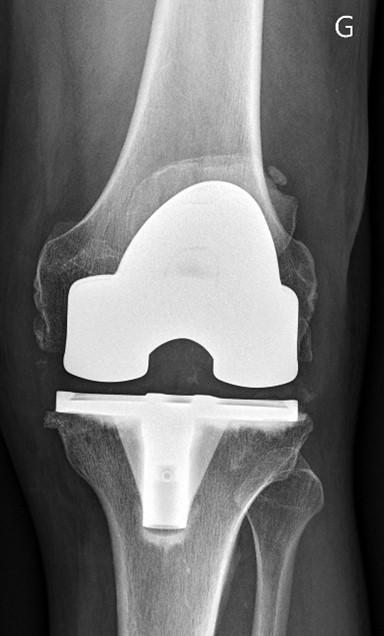 Prothèse unicompartimentale médiale